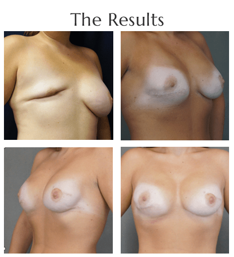 breast-reconstruction-4