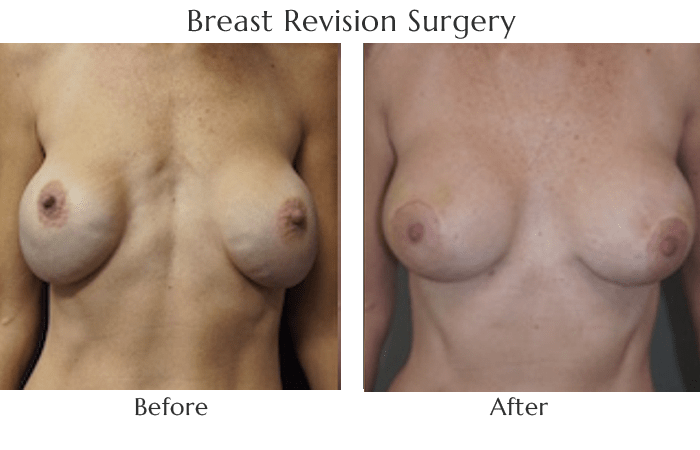 breast-revision-before-and-after-2