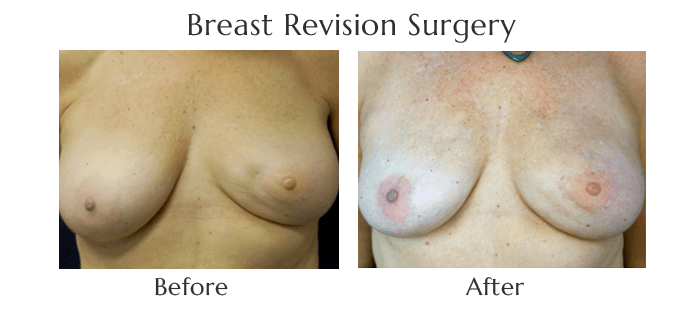 breast-revision-before-and-after-4