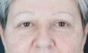 brow-lift-after