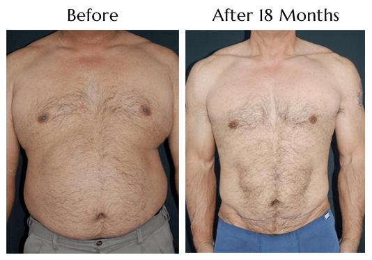 SlimLipo For Men at Obi Plastic Surgery!