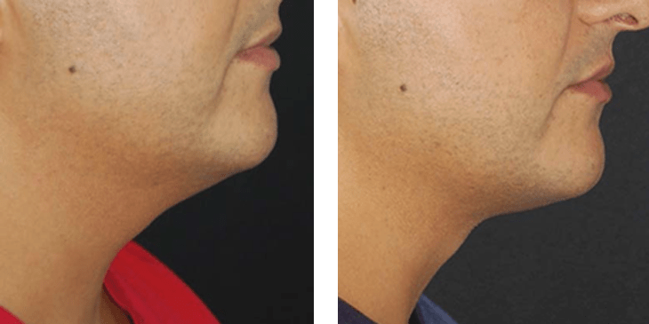 Lipo for the Neck - Slimlipo at Obi Plastic Surgery in Jacksonville