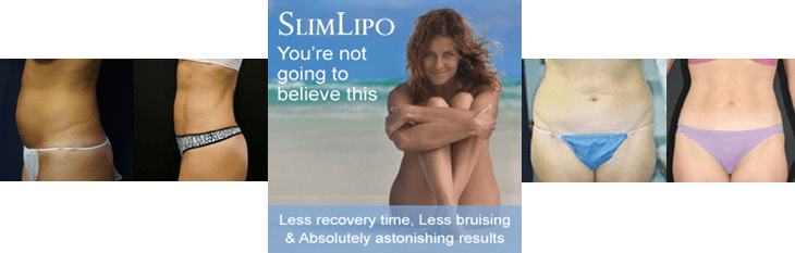 Slim Lipo Laser Liposuction in Jacksonville