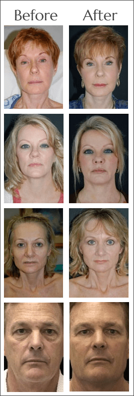 Facial Fat Transfer Before and After