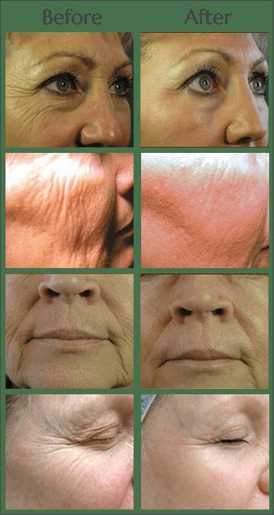 Laser Skin Tightening in Jacksonville at Obi Plastic Surgery