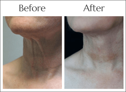 Neck Lift in Jacksonville by Dr. Lewis J. Obi