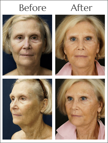 Platelet Rich Plasma Therapy at Obi Plastic Surgery in Jacksonville