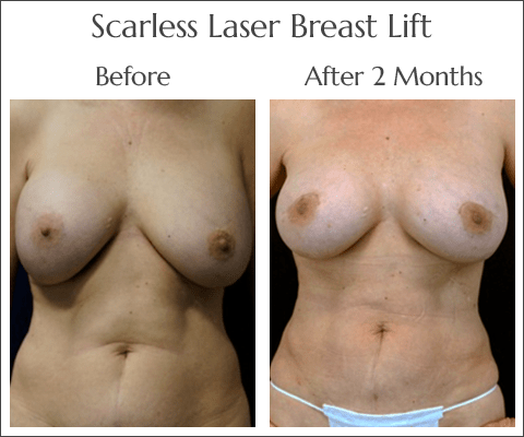 Breast Lift in Jacksonville by Dr. Lewis J. Obi