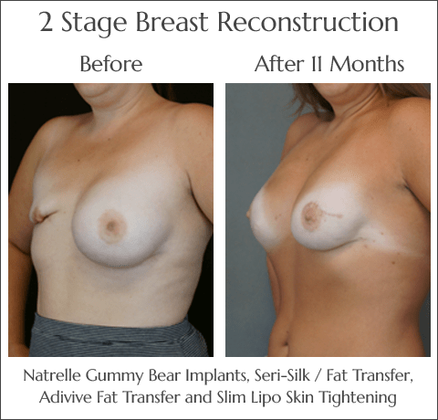 Breast Reconstruction in Jacksonville at Obi Plastic Surgery