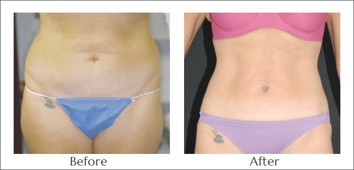 SlimLipo Laser Lipo for the Abdomen
