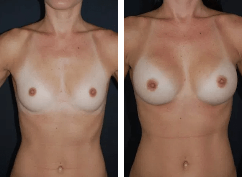 Breast Augmentation by Dr. Lewis J. Obi in Jacksonville, FL