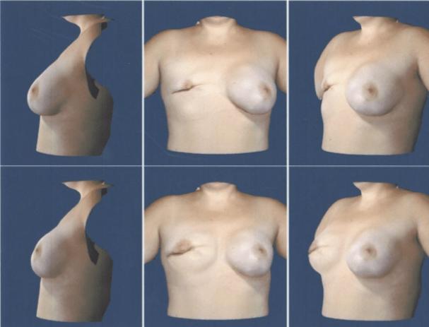 Breast Reconstruction at Obi Plastic Surgery