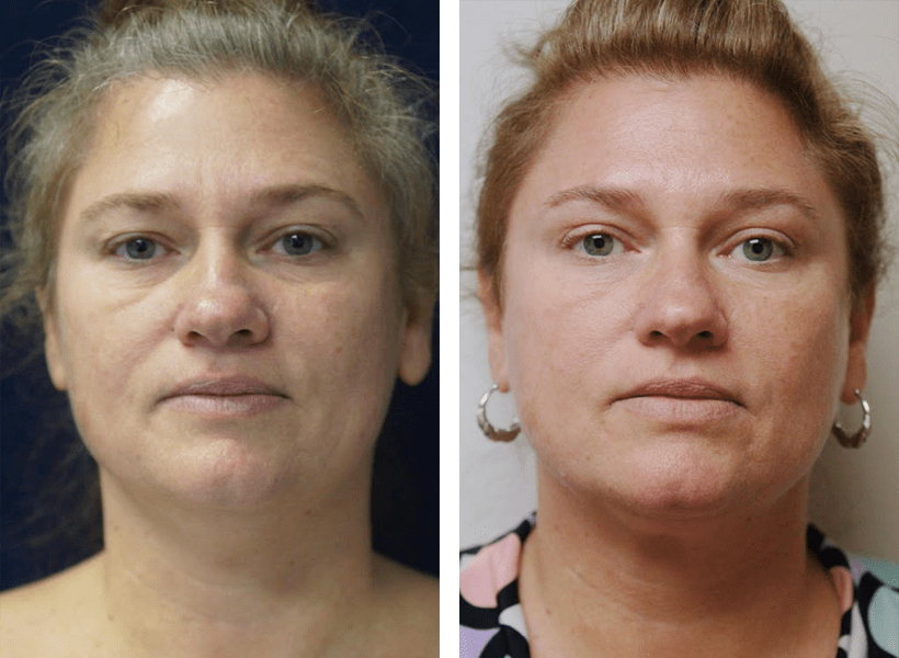 Enhanced Fat Transfer by Dr. Lewis J. Obi in Jacksonville, FL