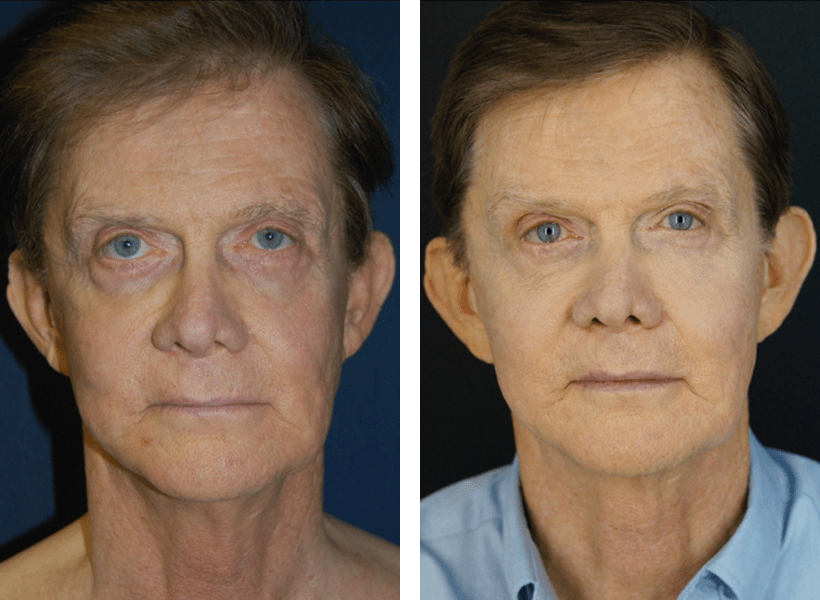 Male Non-Surgical Face Lift