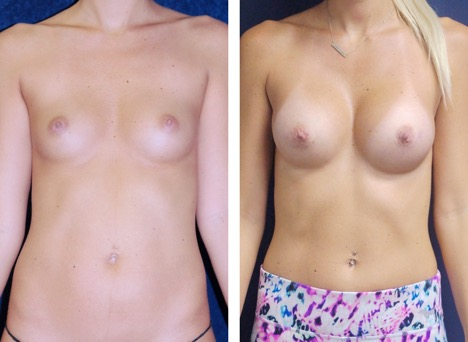 Gummy Bear Breast Implants by Dr. Lewis J. Obi