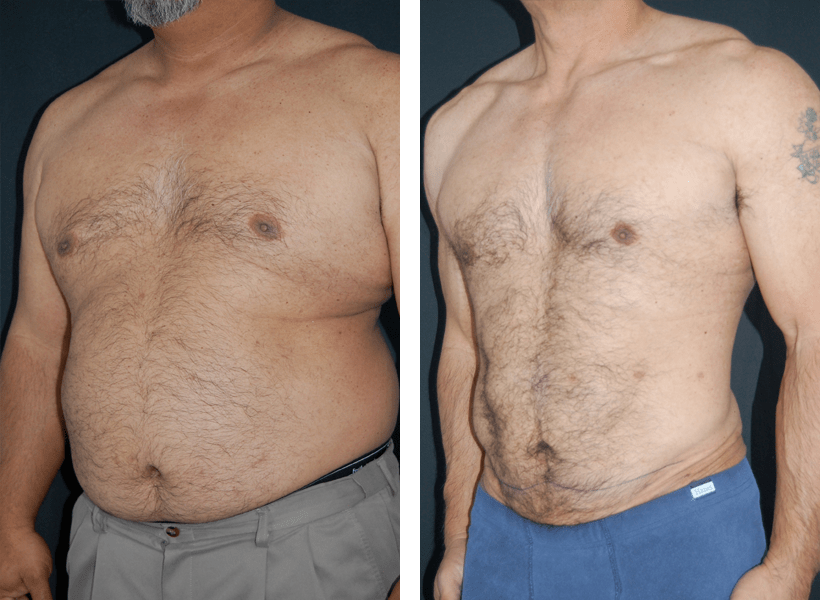 SlimLipo Laser Liposuction by Dr. Lewis J. Obi in Jacksonville, FL