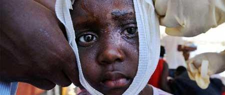 ONU denuncia escravidão infantil e tráfego de pessoas no Haiti