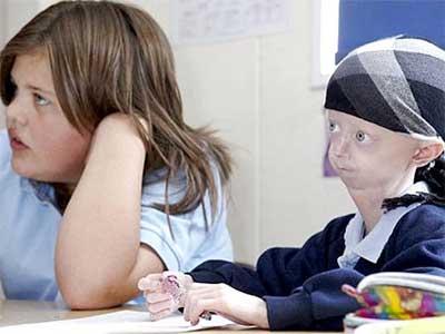 progeria - envelhecimento precoce