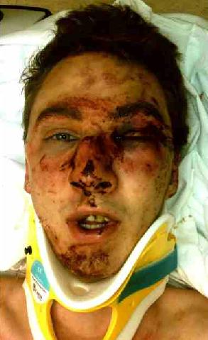 June 2011: 18-year-old Carter Strange is nearly beaten to death in Columbia, SC