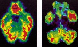 Scans of a normal brain, left, beside that of murderer Antonio Bustamante, who was spared the death penalty after a jury was shown these pictures.