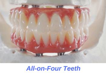 all-on-four-teeth