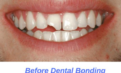 Before-Dental-Bonding