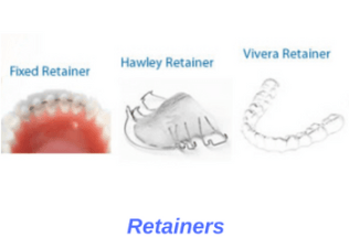 fixed-hawley-essix-orthodontic-retainers
