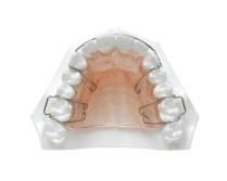 Hawley-orthodontic-retainers