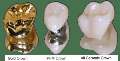 gold-pfm-ceramic-crowns