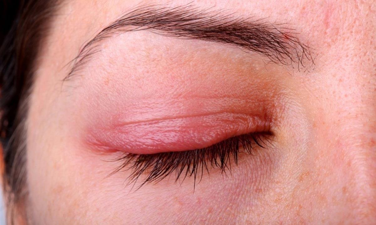 Menetelmät silmän tulehduksen hoitoon