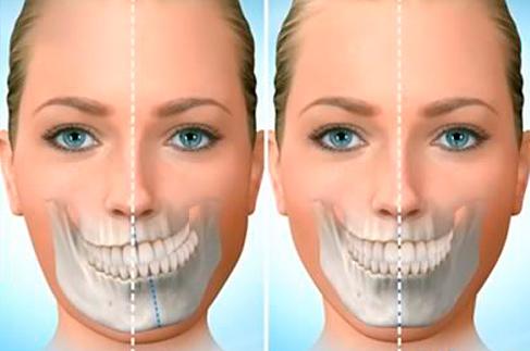 Cirurgia Buco maxilofaciala