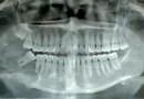Un panorama en la bio-rreconstrucción aplicada a la estomatología