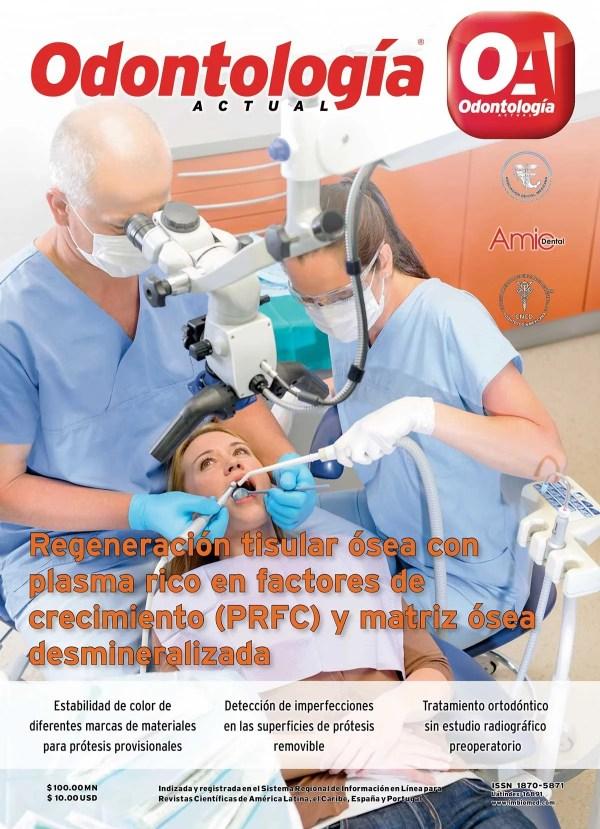 Odontología Actual 180