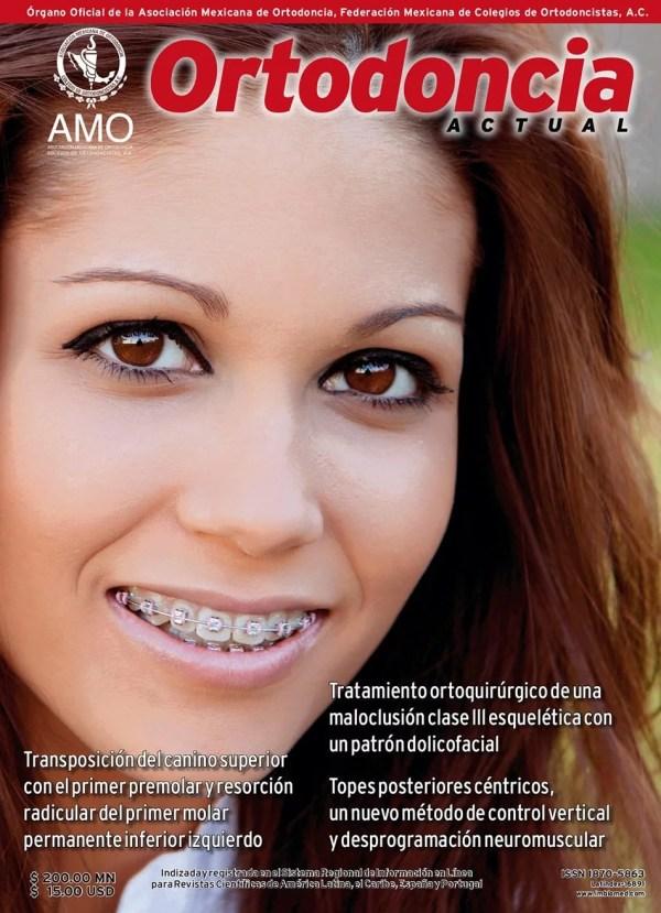 Ortodoncia Actual 60
