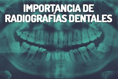 Radiografías dentales