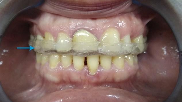 Férula oclusal miorelajante en boca