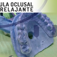 Férula o guarda oclusal miorelajante + Video