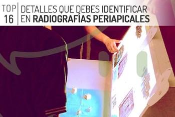 Radiografias dentales periapicales