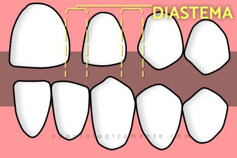 Diastemas