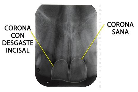 radiografia periapical incisivos