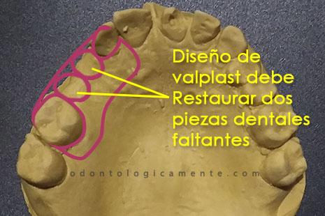 Diseño de prótesis dental