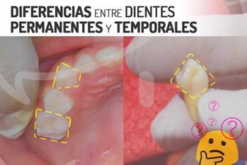 Diferencias entre dientes de niño y adulto
