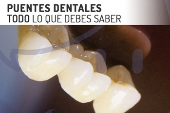 preguntas frecuentes sobre protesis dental fija