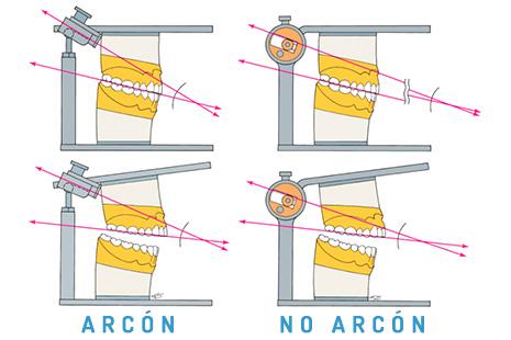 Articuladores dentales Arcón y No Arcón