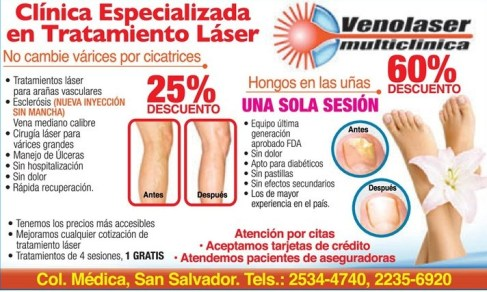 Tratamiento laser varices cicatrices - 09mar14