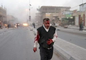 Iraq is the most dangerous place for reporters. A wounded man is seen after a bombing in Najaf, 160 kilometers south of Baghdad (Jan. 14, 2010) after three explosions rocked the southern city of Najaf near a commercial area. (AP Photo/Alaa al-Marjani)