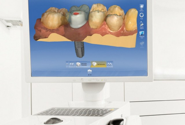 cerec cadcam technology from patterson