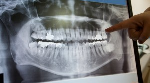 dentist looking at digital imaging
