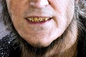 Fenrir Greyback Smile Closeup
