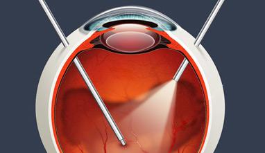 Tratamiento de la Retinopatía Diabética. Cirugía de retina
